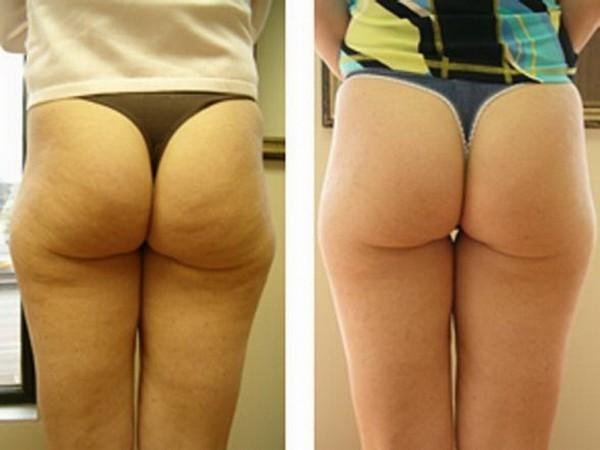 Фото до и после курса процедур душа Шарко №3