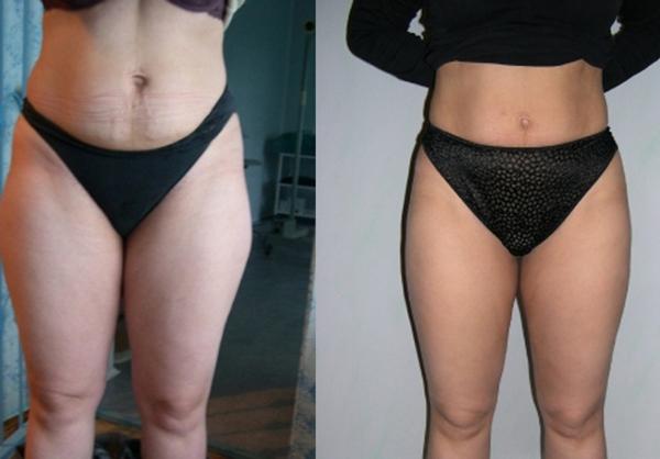 Фото до и после курса процедур душа Шарко №2