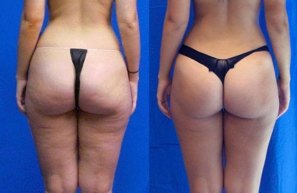 Фото до и после курса процедур душа Шарко №1