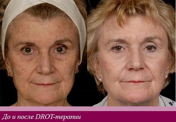 Результат можно оценить через 7-10 дней после процедуры