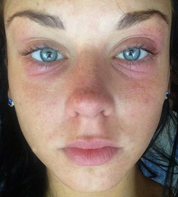 Аллергия – наименьшее из зол при сочетании ботокса и алкоголя
