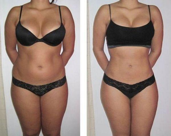 Фото до и после LPG массажа №1