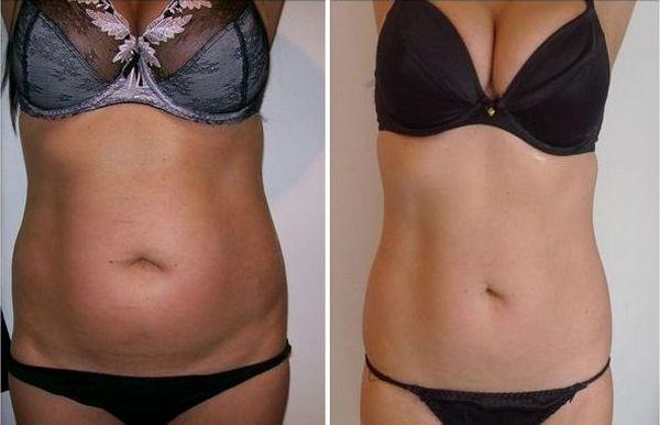 Фото до и после LPG массажа №2