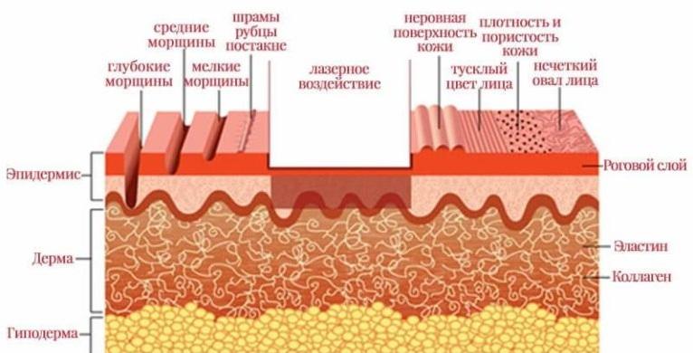 Лазерное воздействие способствует выравниванию рельефа кожи