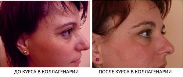 От процедур с использованием коллагенария выравнивается кожа