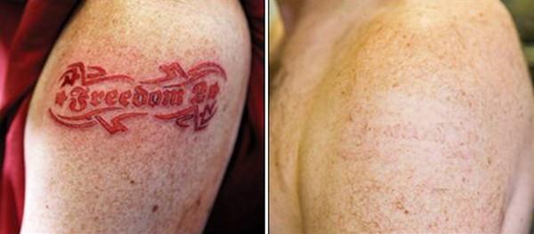 Для удаления татуировки, пигменты которой проникли глубоко в кожу, лучше использовать неодимовый лазер