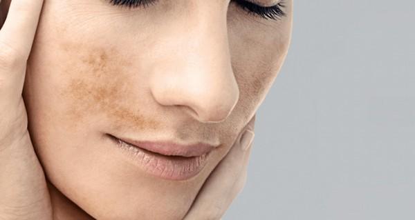 Патологии пигментации – один из примеров повреждений кожи УФ-излучением