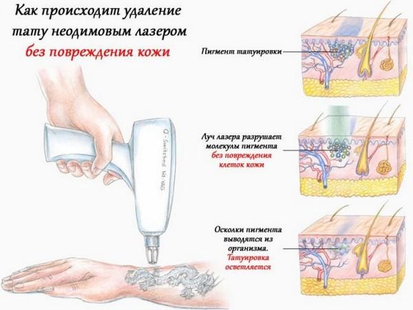 Неодимовый лазер не затрагивает верхние слои кожи, поэтому их повреждение исключено