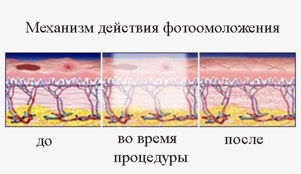 В ходе терапии происходит обработка глубокого слоя эпидермиса