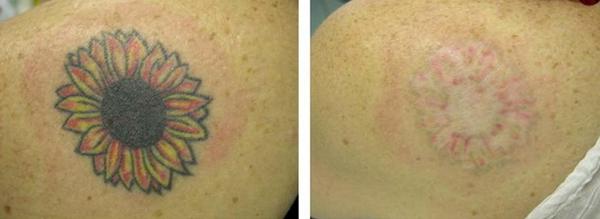 С помощью такой процедуры можно даже удалить татуировки