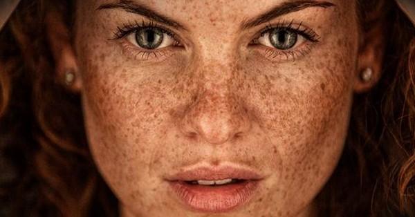 Сильная пигментация кожи может быть устранена путём проведения данной процедуры