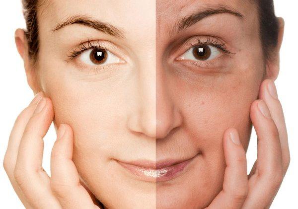 Фотостарение приводит к изменениям кожи
