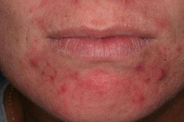 Заболевания кожи считаются противопоказанием к процедуре