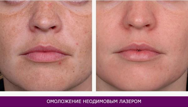 С помощью такой технологии можно омолодить кожу лица