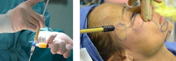Инъекционный липофилинг характерен использованием собственного жира пациента для избавления от борозды