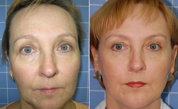 Лазерный луч одинаково воздействует на кожу людей разного возраста