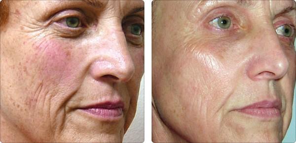 Можно избавиться от пигментации кожи с помощью такого метода