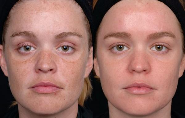 Кожа улучшается путём разрушения меланина и мелких капилляров
