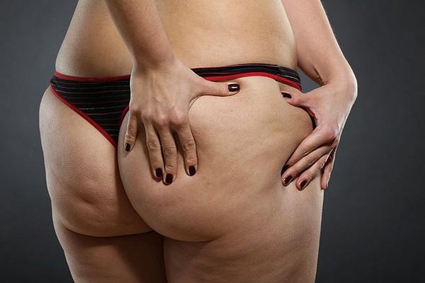 Есть много косметологических методик, которые помогают бороться с целлюлитом