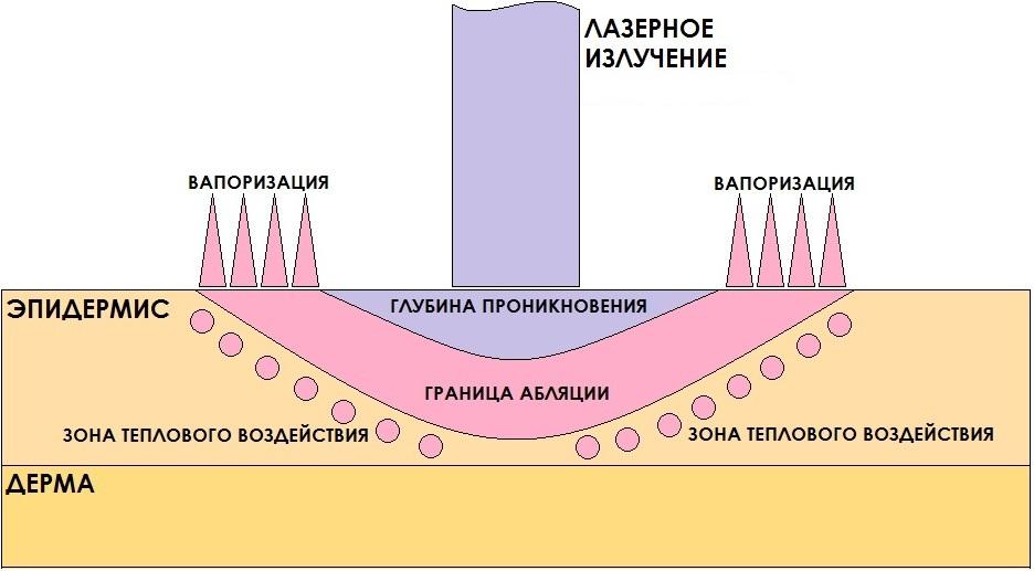 Механизм воздействия лучей на кожу
