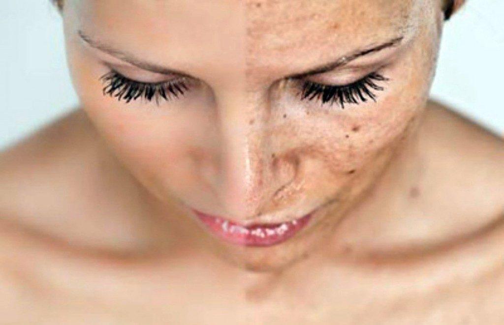 Преждевременное увядание кожи может быть одним из последствий купероза