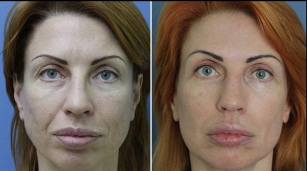 Фото до и после курса процедур микротоковой терапии №2