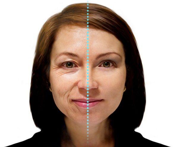 Морщины и прочие дефекты образуются на нежной и тонкой коже