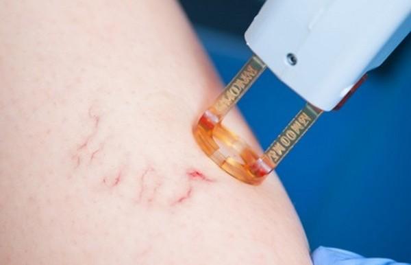 Используя неодимовый лазер, можно нормализовать состояние кровеносных сосудов