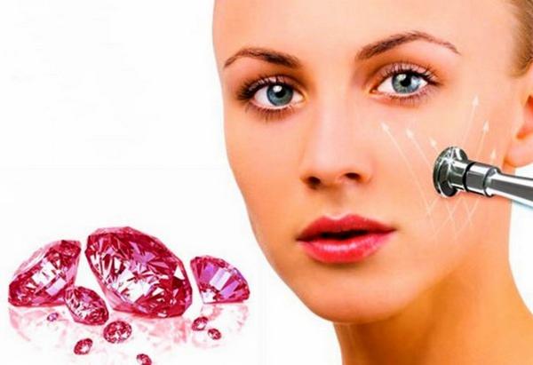 Алмазная дермабразия – самый популярный вид такой процедуры