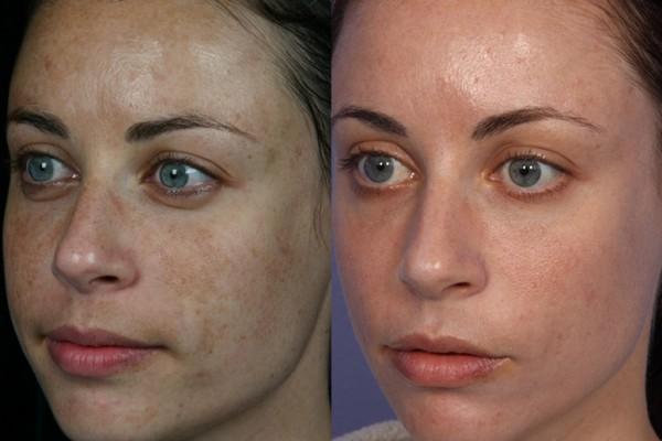 Фото до и после процедуры фракционного лазерного омоложения №2