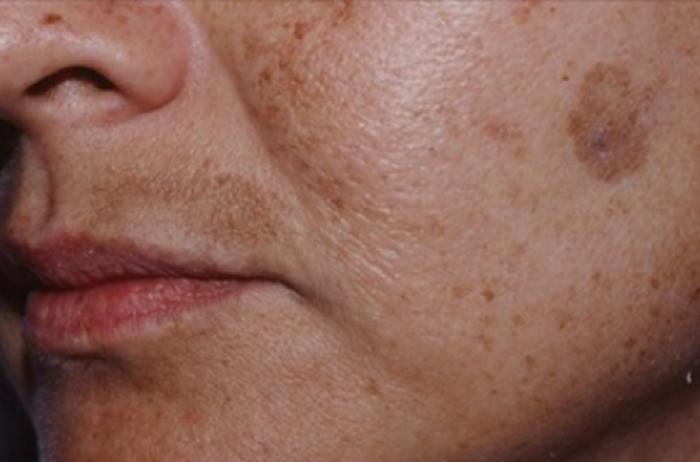 Карбоновый пилилинг показан при гиперпигментации кожи