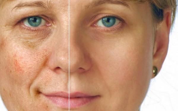 Чем дольше человек находится под воздействием УФ-лучей, тем хуже становится коже