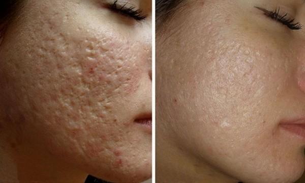 Шрамы и рубцы можно убрать с поверхности кожи