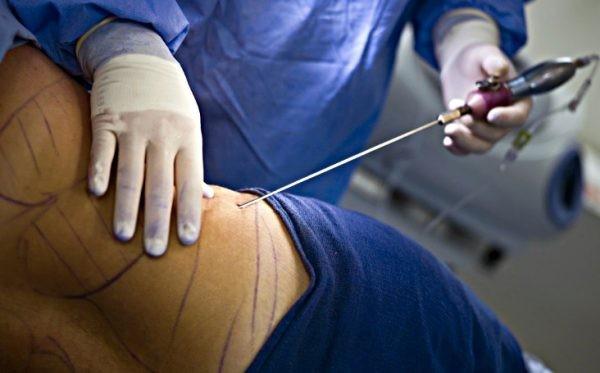 Липофилинг и Vaser липосакцию можно объединить в один комплекс процедур