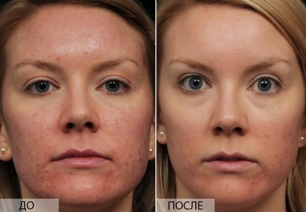 Фото до и после процедуры фракционного лазерного омоложения №1