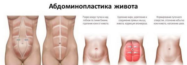 Абдоминопластика – более «жесткий» способ удаления лишнего жира