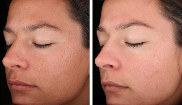 Лазер поможет сузить поры на коже лица