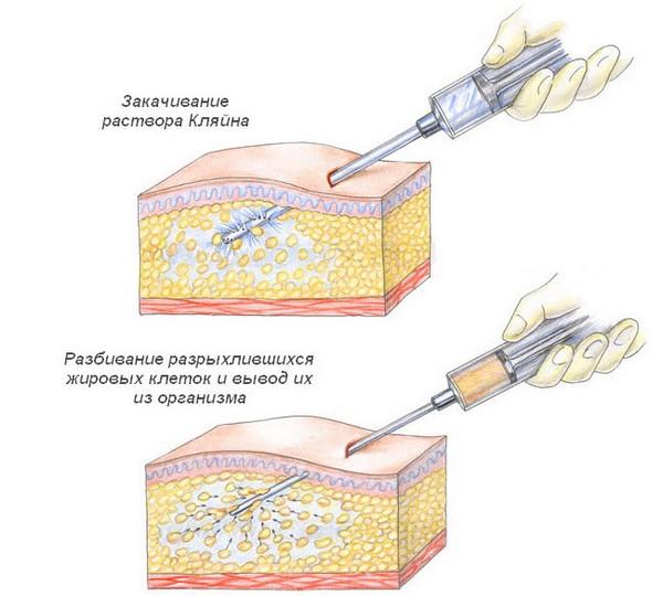 В ходе процедуры классической липосакции через небольшие проколы вводят специальный раствор