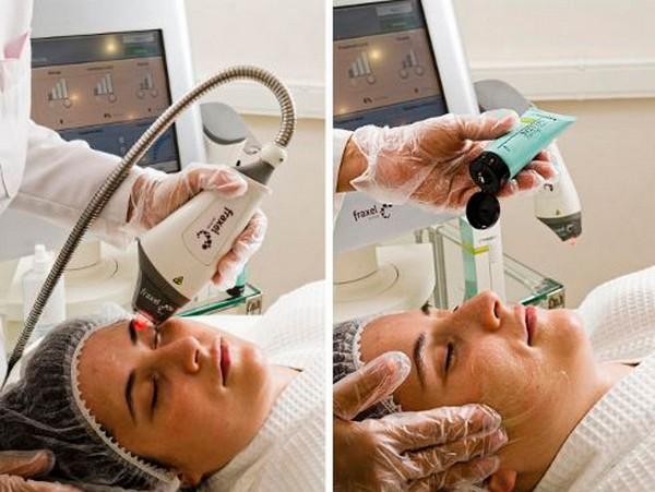 В конце процедуры наносится крем, который успокаивает кожу