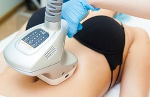 Процедуру можно проходить через 4 месяца после естественных родов
