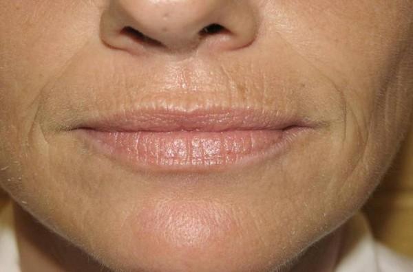 Такие морщины обычно появляются вследствие естественного старения кожи