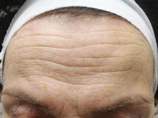 По типу морщин можно определить характер человека