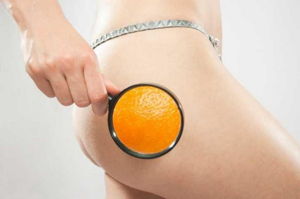 Целлюлит иначе называют «апельсиновой коркой»