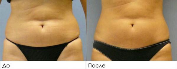 Фото до и после криолиполиза на аппарате Zeltiq № 1