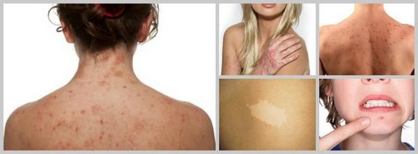 Такие методы противопоказаны при заболеваниях кожи