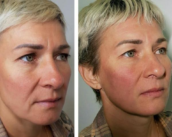 С помощью такой методики можно сделать кожу менее дряблой