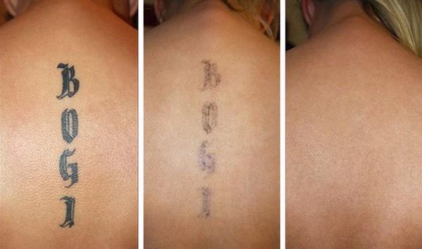 Для удаления татуировки понадобится несколько процедур