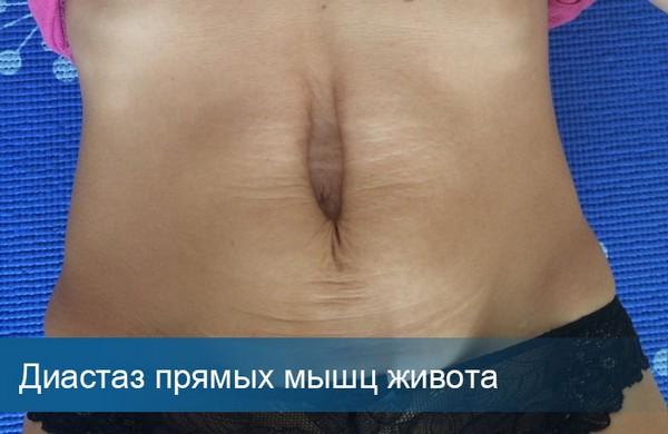 Избавиться от первой или второй стадии диастаза можно за пару месяцев
