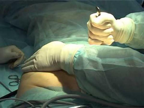 Удивительно, но даже мужчины проходят через операцию по подтяжке ягодиц