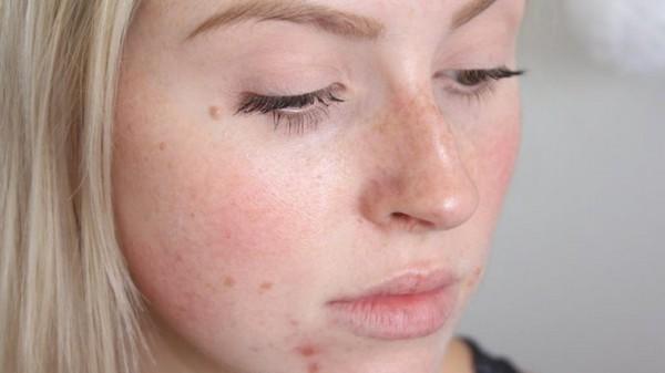 Процедуру не проводят при аллергии на компоненты мезококтейля